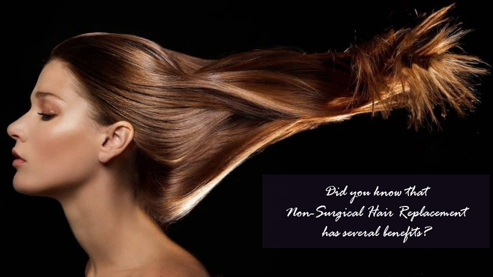 How exactly does Non-Surgical Hair Replacement Work?