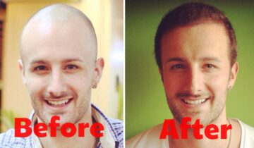Did you know that Non-Surgical Hair Replacement has several benefits?