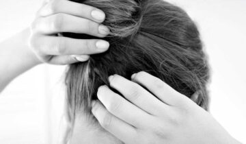 Hair Loss and Scalp Psoriasis… How to cope with this condition?