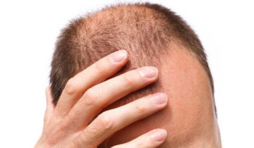 Who is a perfect candidate for Non-Surgical Hair Replacement?