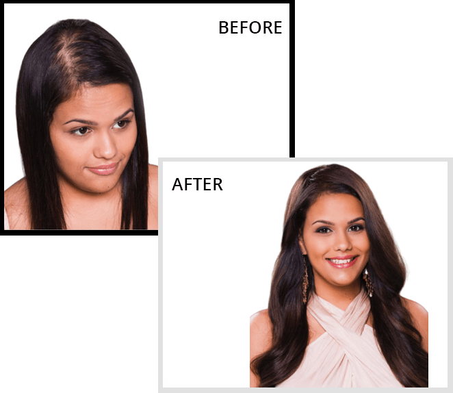 Non-surgical Hair Replacement for Women